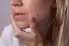 Skin tags and warts affect more than half of people today. These unsightly skin conditions come in all shapes, sizes, and colors Warts On Hands, Warts On Face, What Causes Warts, Wart On Finger, Skin Tags Home Remedies, Warts Remedy, Get Rid Of Warts, Skin Moles