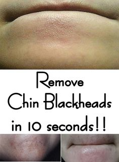 Remove Chin Blackheads in 10 seconds