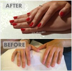 Gel Nails On Bitten Before And After By Fluffynails