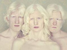 Albinos de Gustavo Lacerda