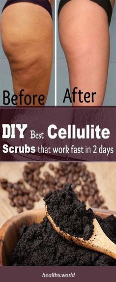 DIY Best Cellulite Scrub That Work Fast In 2 Days! With most Powerful Effective Ingredients #fitness #beauty #hair #workout #health #diy #skin #Pore #skincare #skintags #skintagremover #facemask #DIY #workout #womenproblems #haircare #teethcare #homerecipe