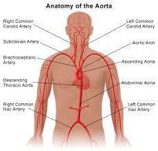 Nueva tecnología israelí impide la progresión del aneurisma de aorta.      Un aneurisma de aorta es una dilatación localizada que produce una debilidad en la pared de la arteria. En niveles más profundos, se puede decir que en la mayoría de las ocasiones se debe a cambios degenerativos ateroscleróticos, que se manifiestan en un importante adelgazamiento de la capa muscular media.