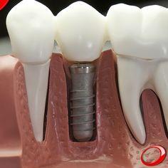 Qu'est-ce qu'un implant dentaire? Ce sont des tiges en titane qui ressemblent à des vis, fixées sur l'os maxillaire (les dents du haut) ou mandibulaire (les dents du bas), qui prendra la place de la racine de la dent absente, où sera placée la dent artificielle. ………………… www.pnid.fr #dentiste #implants #sourire #clinique (Pour plus d'informations ou pour organiser une consultation d'évaluation, envoyez vos coordonnées par message privé)#dentiste #implants #sourire #clinique