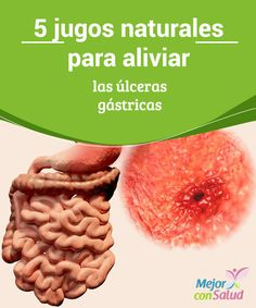 5 jugos naturales para aliviar las úlceras gástricas Las úlceras gástricas o duodenales son un tipo lesión o erosión en la membrana que recubre el estómago.