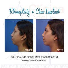 Al realizar una #rinoplastia combinada con #Implantedementon es posible armonizar los rasgos faciales. Quitando o añadiendo tejido para lograr los resultados que tu quieres, en Clinica del Rey te ayudaremos a descubrir lo bella que eres. Decídete ya genda tu cita hoy mismo Citas: USA: (956) 341-3680 MEX: (868) 8130351