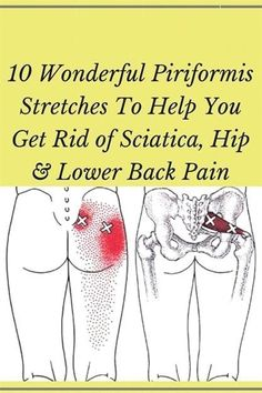 10 Wonderful Piriformis Stretches To Exercise You Get Rid of Sciatica, Hip & Lower Back Pain! Sciatica Exercises, Back Pain Exercises, Lower Back Pain Stretches, Arthritis Exercises, Knee Arthritis, Body Stretches, Flexibility Exercises, Stretching Exercises, Rheumatoid Arthritis
