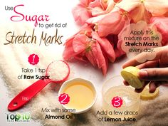 get rid of stretch marks with suagr