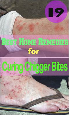 19 Best Home Remedies for Curing Chigger Bites