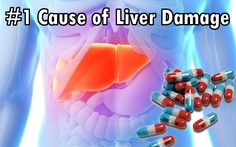 Beware: The #1 cause of liver damage: common cold remedy.