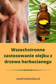 Awesome Health remedies information are offered on our internet site. Take a look and you wont be sorry you did. Healthy Beauty, Health And Beauty, Good Habits, Self Development, Health Remedies, Herbalism, Detox, Improve Yourself, Life Hacks