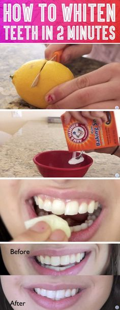 Trick To Whiten Teeth In 2 Minutes.