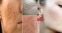 Minimize Pores on Your Face at Home With Only Few Ingredients   Healthy Body And Life