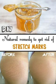 Natural remedies to get rid of strech marks: Mix a spoonful of sugar with a teaspoon of olive oil or castor oil, lemon juice and half a capsule of vitamin E. Beauty Care, Beauty Skin, Beauty Hacks, Diy Beauty, Home Remedies, Natural Remedies, Health Remedies, Stretch Mark Remedies, Tips Belleza