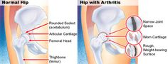 Low Cost Hip Replacement Treatment in India: Stay active as you age Hip Pain, Back Pain, Osteoarthritis Hip, Hip Resurfacing, Hip Injuries, Social Well Being, Body Joints, Joint Replacement, Conditioner