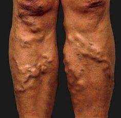 Varicose veins are unsightly and painful. While operations are costly, perhaps a good, old home remedy of using tomato could cure them?