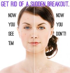 Get Rid of a Sudden Breakout | Get Rid of a Pimple Fast | Epic Beauty Guide