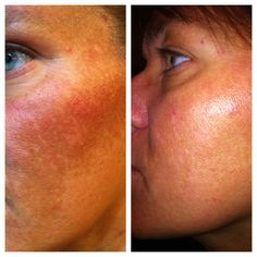 90 days with Nerium AD