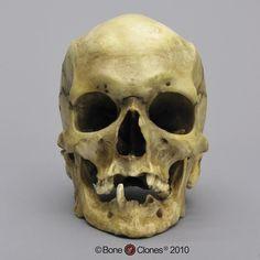 Female Human Skull   home page human adult skulls human masculinized female skull bc 197 ...