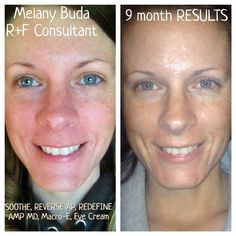 1000 Images About A Solution For Sensitive Skin Redness