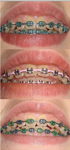 This patient switched her braces's color three times!  Which do you like best?