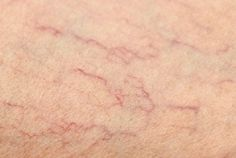 Can Varicose and Spider Veins Be Eliminated? - Step To Health Get Rid Of Spider Veins, Get Rid Of Spiders, Varicose Vein Remedy, Varicose Veins Treatment, Natural Home Remedies, Natural Healing, Herbal Remedies, Natural Oil, Health Remedies