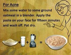 Acne Scar Removal - Acne Scar Home Remedies - How to Remove Your Acne Scars Naturally * Click image to read more details. Home Health Remedies, Home Remedies For Acne, Natural Health Remedies, Herbal Remedies, Natural Cures, Natural Skin, Blemish Remedies, Natural Beauty, Health And Beauty Tips