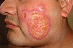 Basal Cell Carcinoma Home Remedy and other natural treatment Basal Cell Carcinoma, Types Of Cancers, Natural Treatments, Home Remedies, Health, Health Care, Natural Remedies, Home Health Remedies, Natural Home Remedies