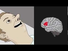 A spin around the brain (animation of how fMRI works)