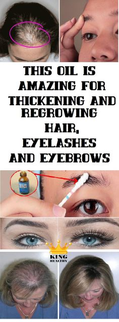 This Oil Is Great For Thickening And Regrowing Hair, Eyelashes And Eyebrows