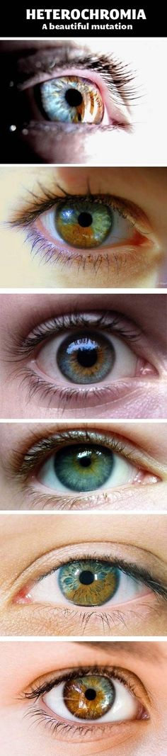 Heterochromia. Cameron's eyes look like the third picture. I always just called them hazel.