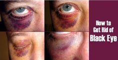 cool 14 Simple Ways to Get Rid of Black Eye Bag
