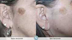 BEFORE & AFTER  www.YouthSecrets.nerium.com