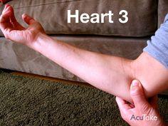 Arm pain, anxiety – AcuTake