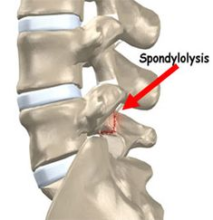 Spondylolysis and spondylolisthesis are the most common causes of structural back pain in children and adolescents. Spine Problems, Chiropractic Center, Spondylolisthesis, Stress Fracture, Massachusetts General Hospital, Piriformis Syndrome, Spine Surgery, Spinal Stenosis, Spine Health