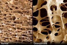 Osteoporosis is a serious condition that can lead to painful bone fractures. Find out from WebMD who gets osteoporosis, how to tell if you have it, how to prevent it, and effective treatment options. Bone Health, Oral Health, Health And Wellness, Health Tips, Health Care, Health Foods, Health Articles, Dental Health, Women's Health