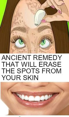 DISCOVER THE ANCIENT REMEDY THAT WILL ERASE THE SPOTS FROM YOUR SKIN LIKE WITH A RUBBER! GET THE PERFECT SKIN THAT YOU ALWAYS WANTED! » World Truth 365