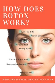 How Does Botox Work? Botox has been around for 50 years and is a very safe effect treatment if provided by a licenced, trained medical practitioner. Botox Brow Lift, Eyebrow Lift, How Does Botox Work, Vaseline Beauty Tips, Botox Fillers, How To Line Lips, Beauty Tips For Hair, Quites, Anti Aging Skin Care