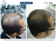 Are you suffering from unwanted hair loss? Then click this to find out what has helped this man!