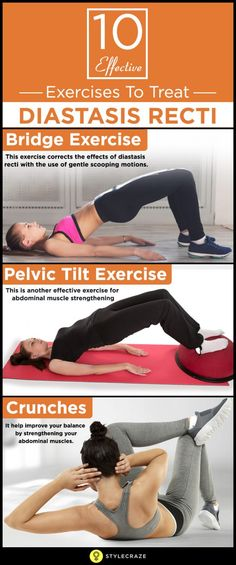 69badb447e7 10 Best Diastasis Recti Exercises You Can Do At Home To Strengthen Your Core