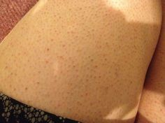 """Keratosis pilaris is commonly named as """"chicken skin"""" in which your skin gets small red or white bumps which remain like acne bumps usually on your upper arms, legs, cheeks or buttocks. Here are Best 10 Remedies to treat these skin bumps (Chicken Skin / keratosis Pilaris)."""