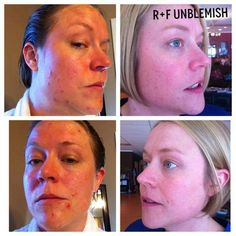 Best product you will ever use for #acne!  No more expensive trips to the #dermatologist! R+F UNBLEMISH has you covered. 60 day money back guarantee! www.emilycrump.myrandf.com