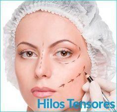 II▻Los Hilos Tensores en la cara actúan preservando los rasgos personales sin perder la expresión y la belleza propias sin dar volúmenes ya que actúan elevando y tensando la piel.