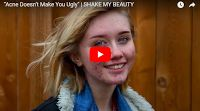 """SCG VIRALS   """"Acne Doesn't Make You Ugly""""   SHAKE MY BEAUTY"""