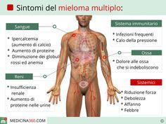 mieloma multiplo.sintomi