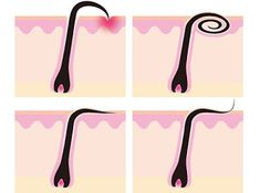 Pour se débarrasser des poils incarnés rapidement je vous propose dans cet article les 7 meilleures solutions naturelles.