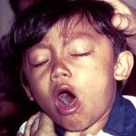 CROUP  Remedy, with which one is best at which time.  Should have the homeopathic medicines on hand.