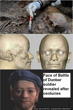The Scottish soldier's skeleton, dating from was found in a mass grave near Durham Cathedral. Civil War Books, Durham Cathedral, Fort Sumter, Book Corners, Worcester, American Civil War, Anthropology, Archaeology, Genealogy