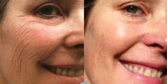 Real Results Gallery :: Nerium International Wonderful new anti wrinkle to hit the market face book me and I will get a sample to you to try. Reduce Weight, How To Lose Weight Fast, Facelift Without Surgery, Natural Face Lift, Nerium International, Facial Yoga, Eye Wrinkle, Weight Loss Before, Weight Loss Inspiration