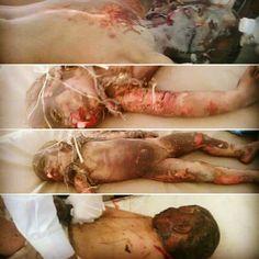 صور من المجزرة التي ارتكبها #العدوان_السعودي صباح اليوم في منطقة محديدة التابعة لمديرية باقم محافظة #صعده     #اليمن #السعودية #yemen #اليمن_مقبرة_الغزاة #قرن_الشيطان_سينكسر