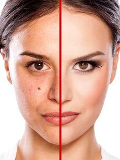 In nur 4 Schritten zu einem wachem, jungem Gesicht? Das geht mit dem richtigen Schmink-Tricks ganz leicht. Mit diesem Make-up brauchst du kein Facelift.